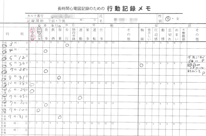 ホルター心電図の行動記録メモ